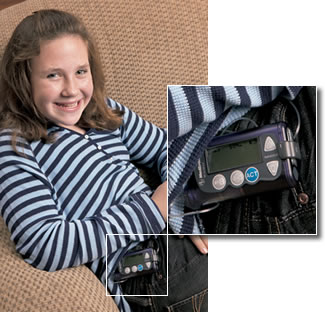 diabetes-insulin-pump